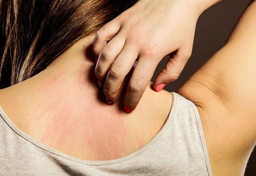 Psoriasis: Cuando la piel nos habla