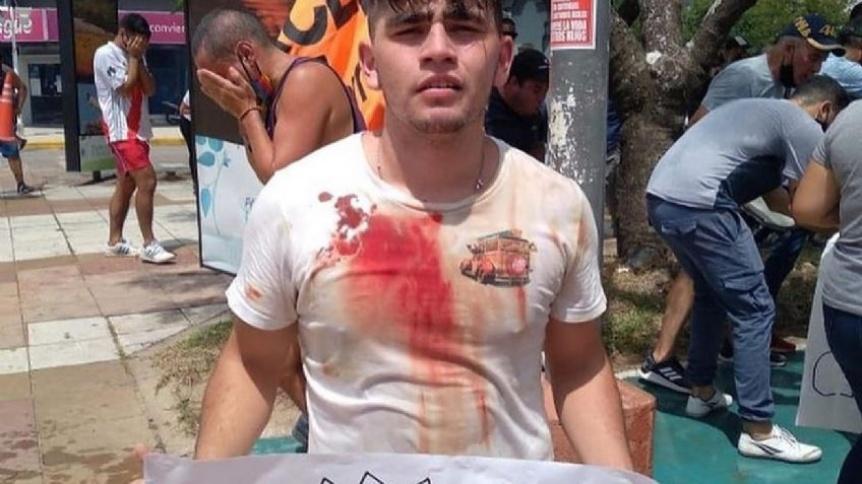 Represi�n en Formosa: impactantes im�genes de la brutalidad policial