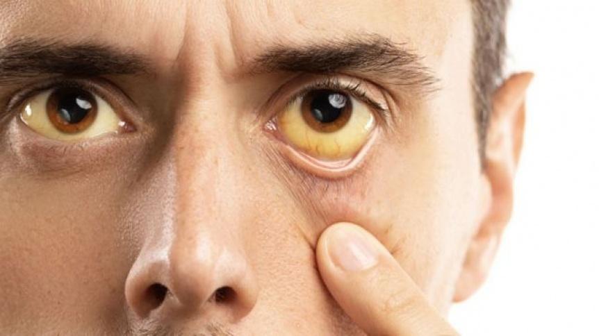 Hepatitis: El camino para dejar atr�s un flagelo evitable